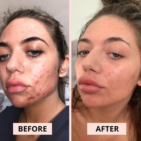 before and after, skincare routine, millionaire beauty skincare, skincare before and after, skincare goals, skincare transformation
