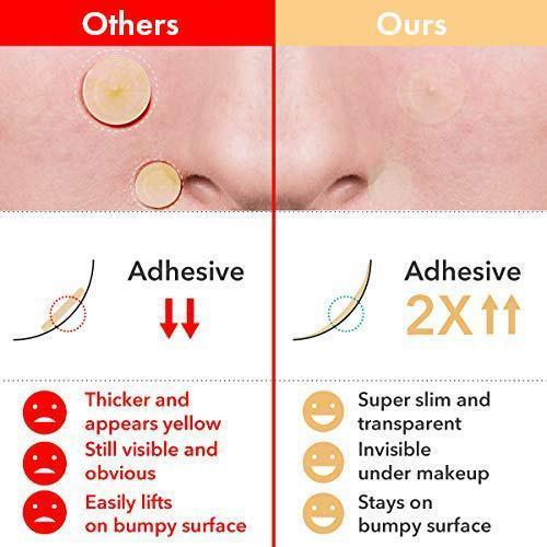 Skin Tag & Acne Patch - (36 patches/pack)