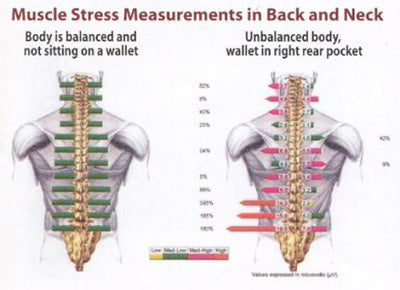 Spinal Stress