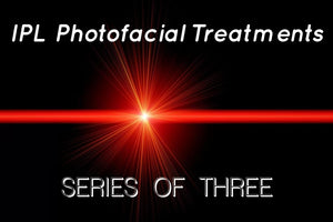 IPL Photofacial Treatments: Series of 3