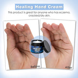 Cotton Gloves + Hand Cream Overnight Bedtime, Eczema Lotion Moisturizing Hands, Dry Cracked Hands, Repair, Working Healthy Treatment Itchy Skin Relief