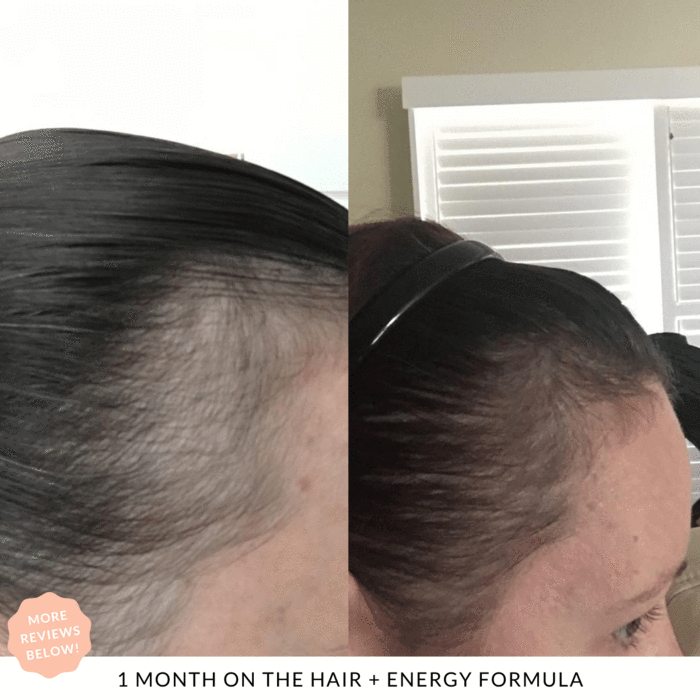 1 month results Hair + Energy JSHealth