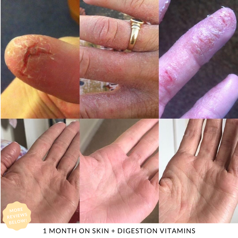 1 month results using JS HEALTH  Skin + Digestion