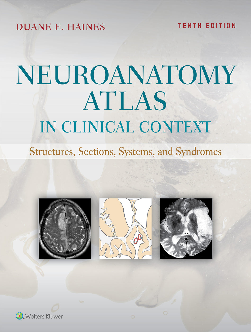 Neuroanatomy in Clinical Context: atlas of structures sections and systems 10th edition