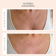 Load image into Gallery viewer, Wrinkles Schminkles Chest Wrinkles & Décolletage Wrinkles Smoothing Kit