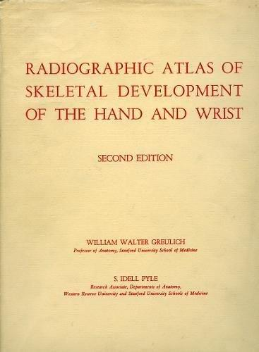 Radiographic Atlas of Skeletal Development of the Hand and Wrist, Hardcover, 1 Edition by Greulich, William Walter