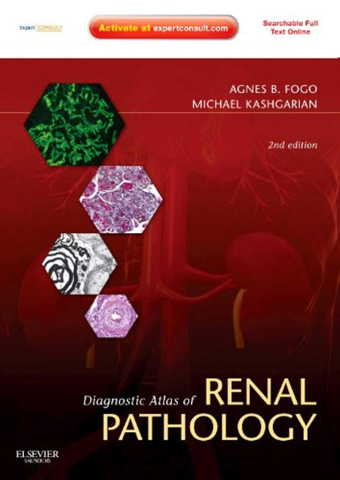 Diagnostic Atlas of Renal Pathology: Expert Consult - Online and Print, Hardcover, 2 Edition by Fogo MD, Agnes B. (Used)