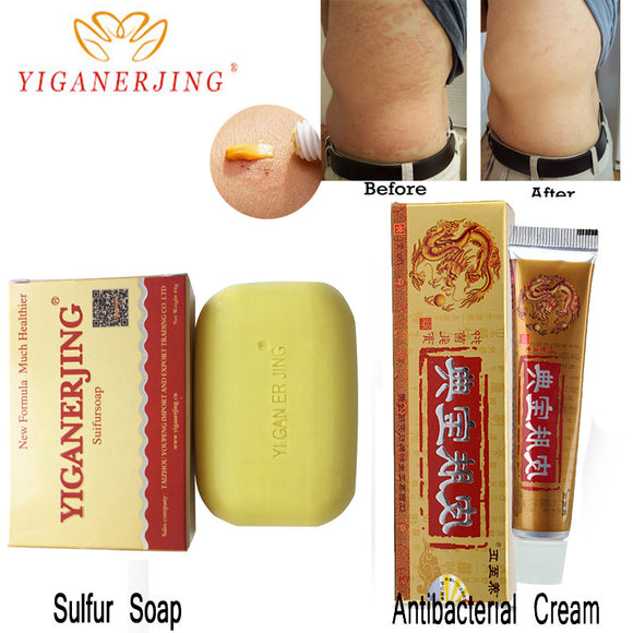 Psoriasis Cream Dermatitis Eczema Ointment Skin Treatment