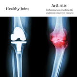 Comprehensive Arthritis support