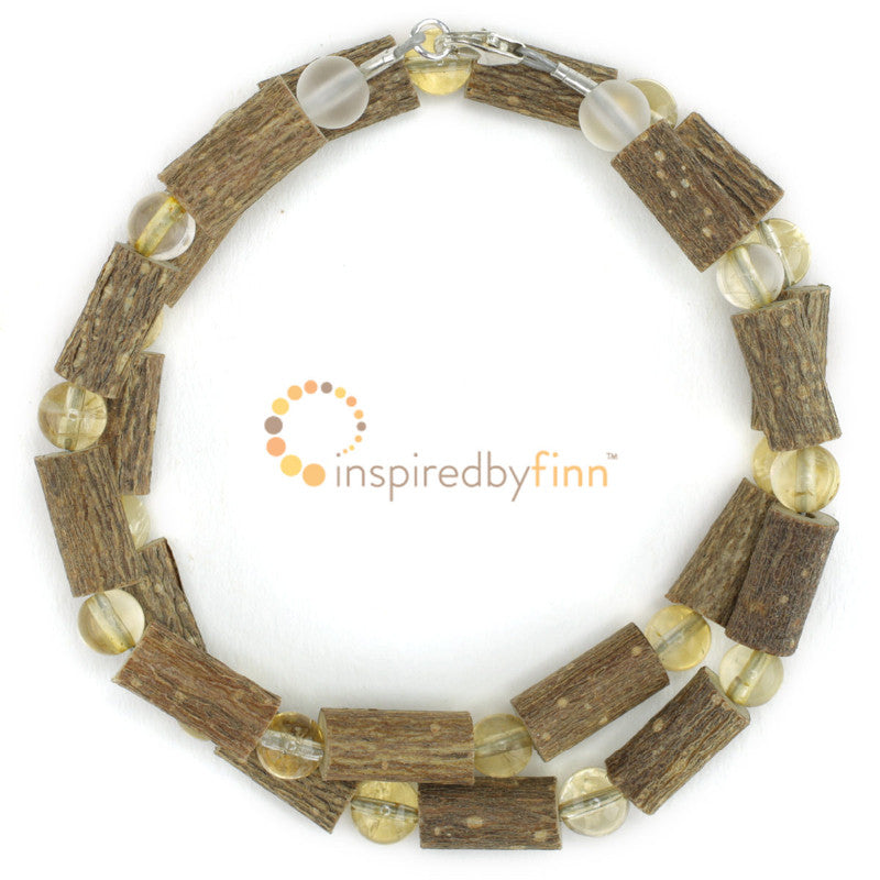 Citrine Gemstone & Hazel - The Best for GERD, Constipation, and Other Digestive Disorders