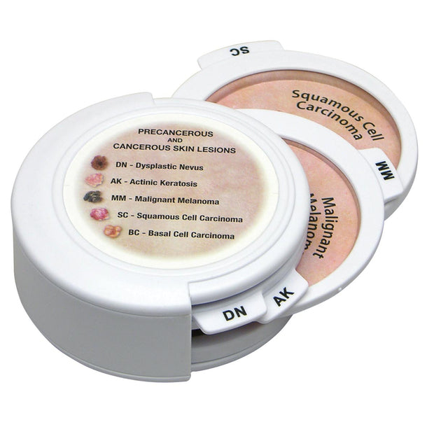 Skin Cancer Disk Set