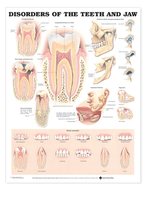 Disorders of the Teeth and Jaw