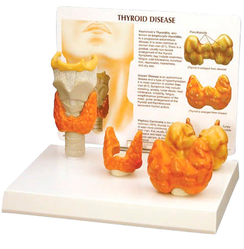 Thyroid Disease Model