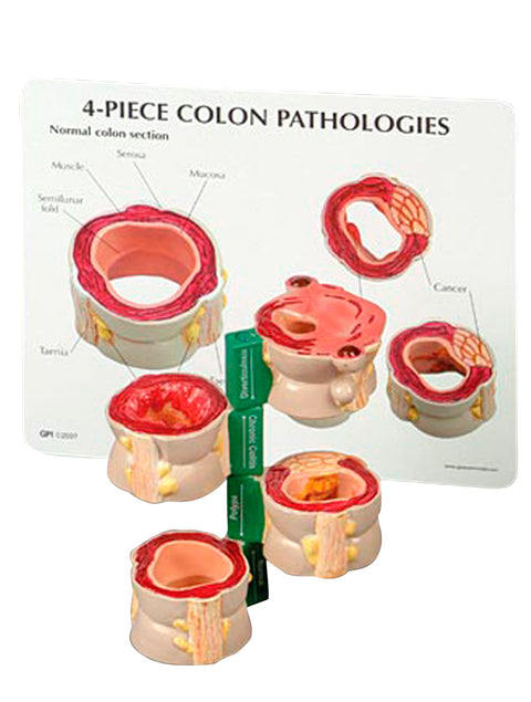 Four Piece Colon Model with Pathologies