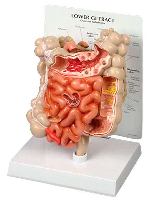 Lower GI Tract Model
