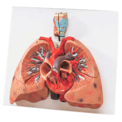 Lungs With Heart Model