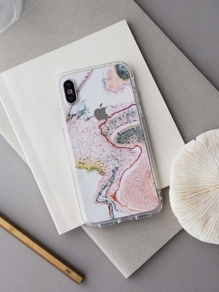 Microscopic Cells Skin + Case (iPhone)