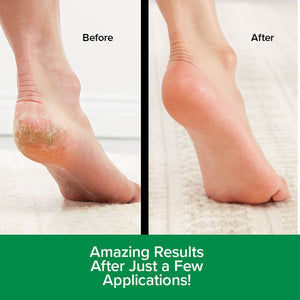 Before and after image of someone's heel after using Hempvana Heel Tastic. Headlines say amazing results after just a few applications