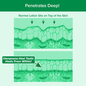 Hempvana Heel Tastic infographic showing demonstration of normal lotion vs Hempvana Heel Tastic working on skin. Text says Penetrates Deep! Normal Lotion Sits on Top of the Skin, Hempvana Heel Tastic Heals From Within!