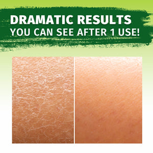 Hempvana Moisturizer: before and after of dry skin hydrated with Hempvana Moisturizer. Headline says Dramatic Results You Can See After 1 Use!