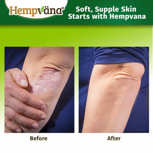 Before image of person's dry, scaly elbow. After image shows hydrated skin after using Hempvana Moisturizer