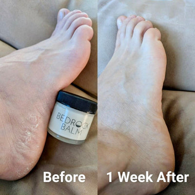 Dry feet skincare secret! Smooth your flaky heels