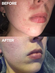 Before and After Face Base Vitamin E Day Cream