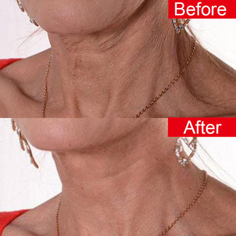 New Reusable Anti Wrinkle Neck