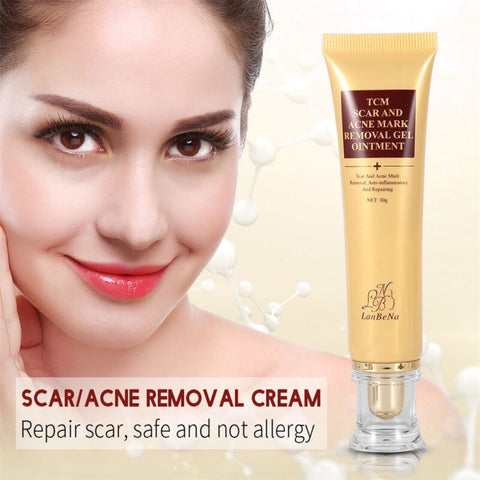 30g/1pcs Acne Scar Removal Cream