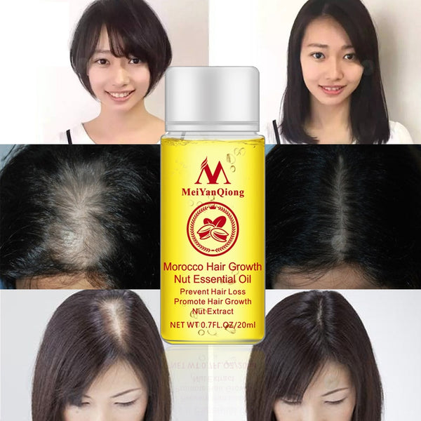 Nut Hair Care Growth Liquid Hair Nourishing Care Serum Essence Hair Growth Prevention Hair Loss Essential Oil