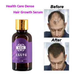 100 % Grow Hair For Men Women Pure Natural Hair Loss Products Pilatory Treatment