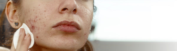 How to guide for fading acne scars, hyperpigmentation and dark spots.