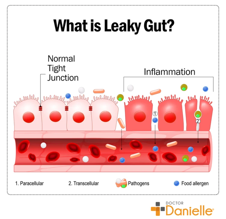 Leaky gut and glutamine