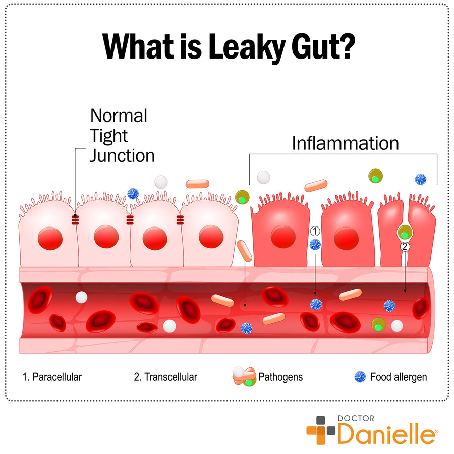 Gut Assist - Leaky Gut Support Supplement