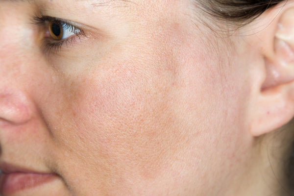 Skin Pigmentation (Hyperpigmentation) - Causes, Home Remedies and Tips