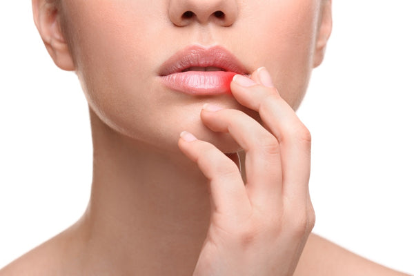 Cold Sore - Signs, Diagnosis And Home Remedies
