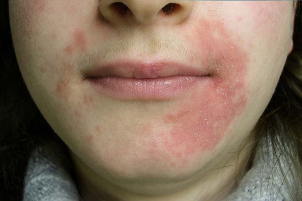 Dermatitis---Types,-Causes,-Symptoms-and-Home-Remedies