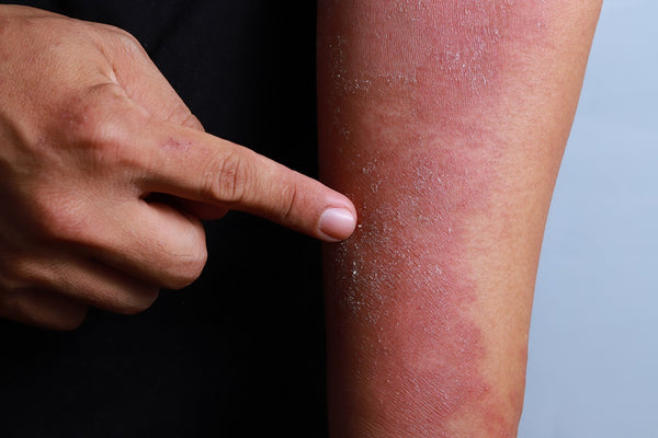 Everything You Need to Know About Fungal Infections and How to Treat Them