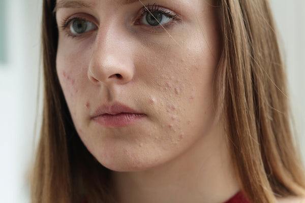 Tips and Home Remedies for Pimples & Acne