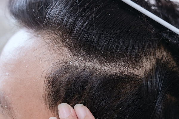The Reasons Behind Dandruff