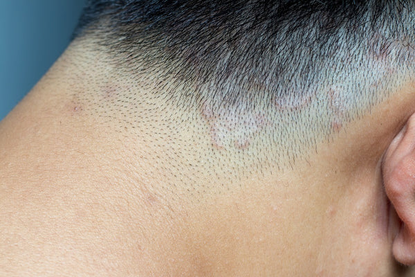 Ringworm of the Scalp (Tinea Capitis) - Causes, Symptoms and Remedies