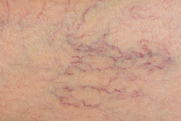 Varicose Veins - Causes, Home Remedies and Prevention
