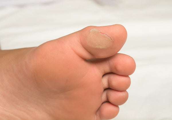Blisters on Feet - Causes, Home Remedies and Prevention