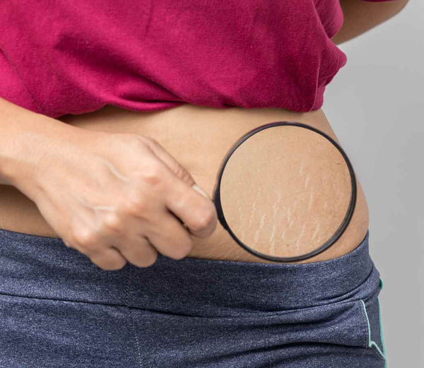 Tips to Use Castor Oil for Stretch Marks