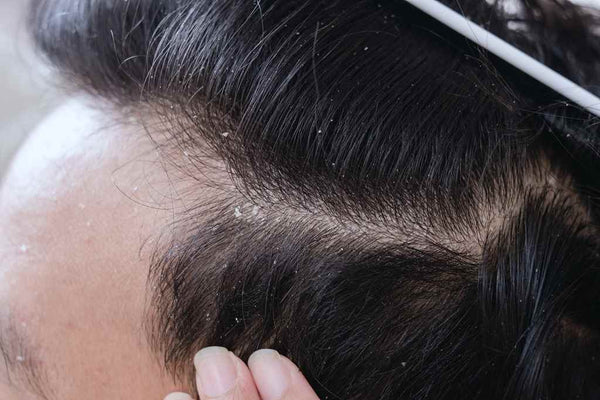 Helps With Dandruff