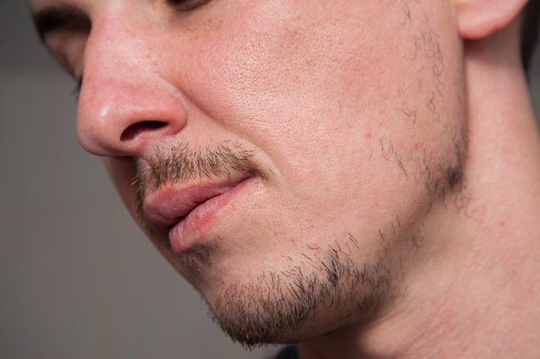Beard Can Be Patchy