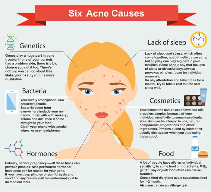 Six Acne Causes