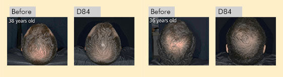 Before and after usage of anveya hair growth vitalizer for 20 years old