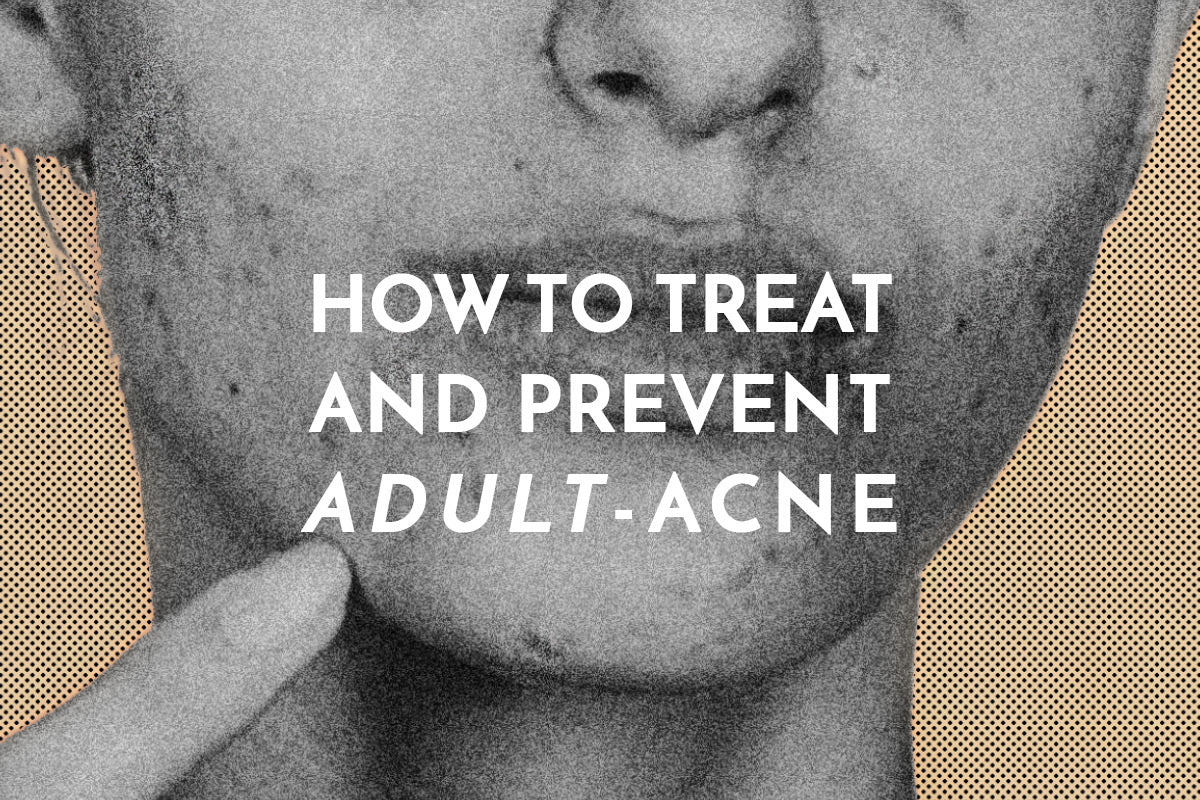How to effectively get rid of and prevent adult acne. Combat breakouts and pimples