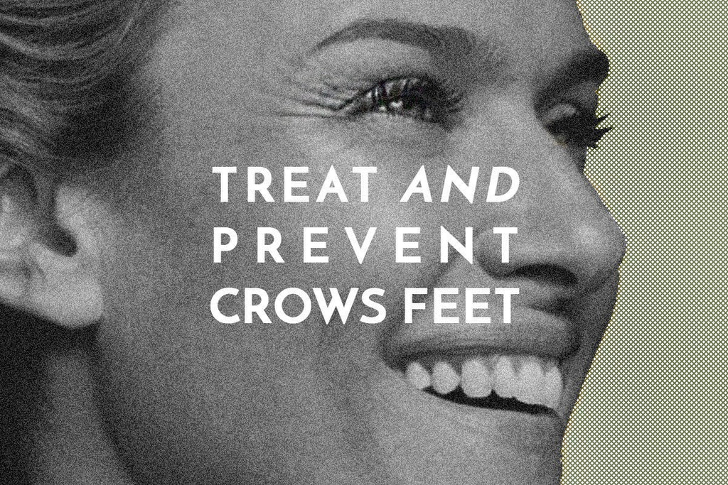 How to Effectively Treat and Prevent Crow's Feet